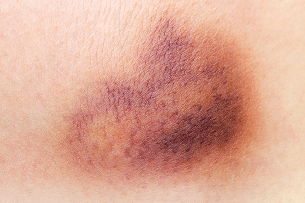 close up of a bruise