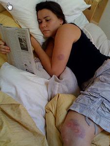 paintball bruises