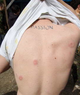 paintball bruises