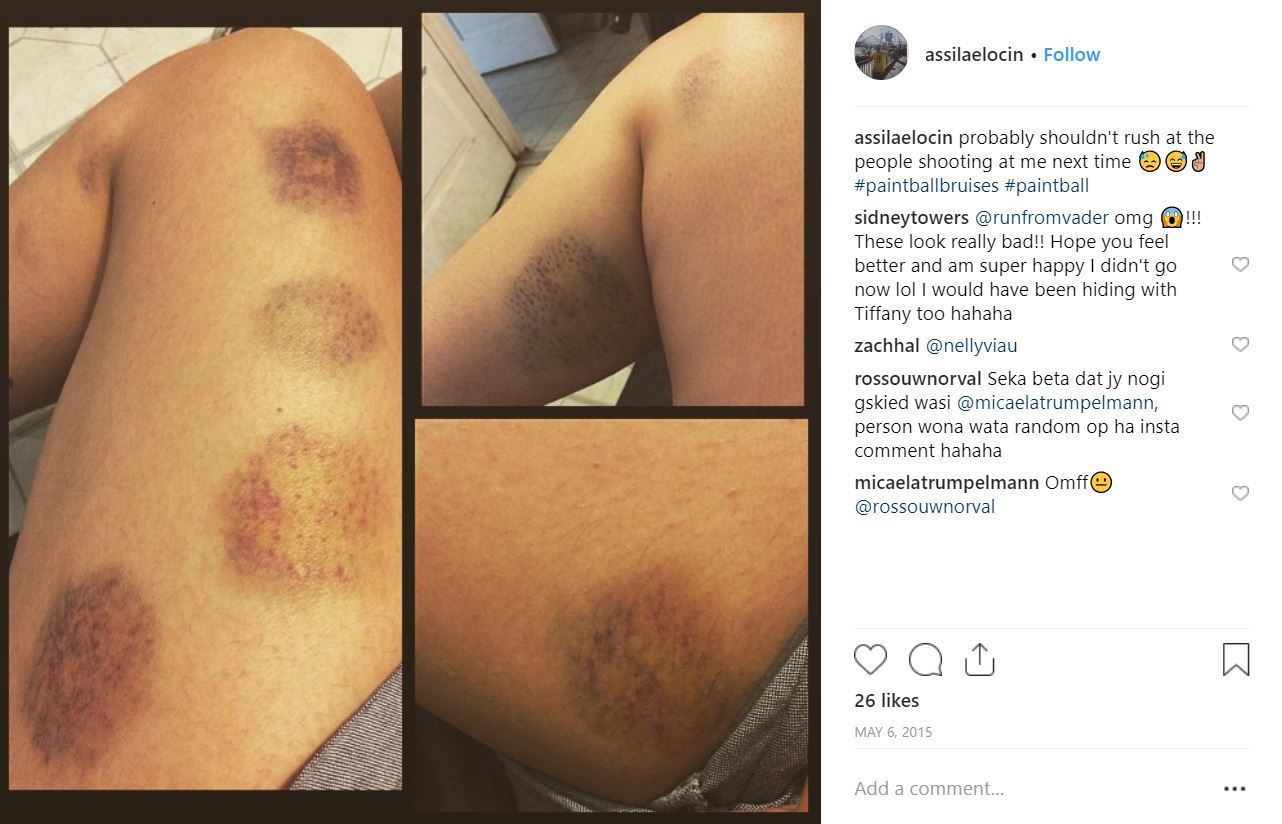 instagram post showing really bad leg bruises